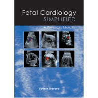 Fetal Cardiology Simplified - A practical manual
